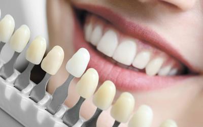 Когда нельзя устанавливать керамические виниры - Стоматология «Линия Улыбки»