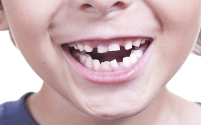 Лечить ли молочные зубы? - Стоматология «Линия Улыбки»