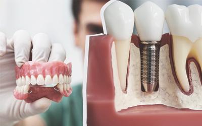 Нагрузка на восстановленный ряд дается сразу - Стоматология «Линия Улыбки»