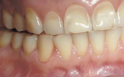 Причины заболевания - Стоматология «Линия Улыбки»