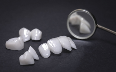 Процесс производства и установки виниров - Стоматология «Линия Улыбки»
