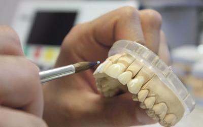 Производства керамических виниров - Стоматология «Линия Улыбки»