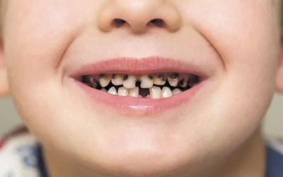 Самые распространенные стоматологические заболевания в детском возрасте - Стоматология «Линия Улыбки»