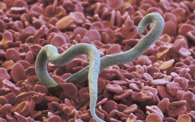 Стоматит как симптом глистной инвазии - Стоматология «Линия Улыбки»