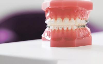 Варианты установки брекет-аппарата - Стоматология «Линия Улыбки»