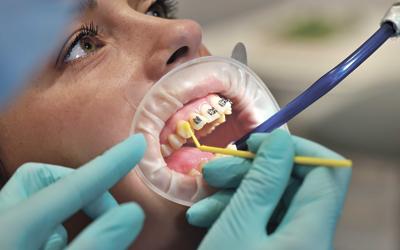 Высушивание зубной поверхности и покрытие ее клеем - Стоматология «Линия Улыбки»