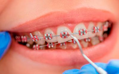 Болевые ощущения в области определенного зуба - Стоматология «Линия Улыбки»