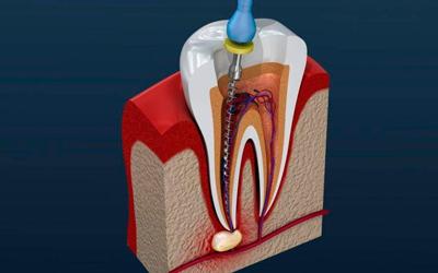 Болезни полости рта - Стоматология «Линия Улыбки»