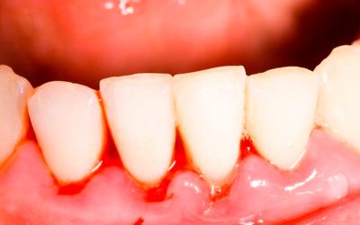 Как проявляется патология - Стоматология «Линия Улыбки»