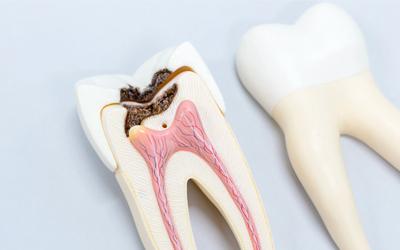 Кариозная полость находится на стадии пятна - Стоматология «Линия Улыбки»