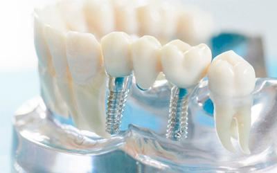 Некачественный стоматологический протез - Стоматология «Линия Улыбки»