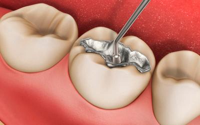 Появляется боль при надавливании на запломбированный зуб - Стоматология «Линия Улыбки»