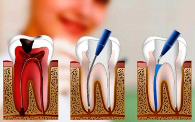Преимущества методики - Стоматология «Линия Улыбки»