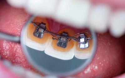 Проблемы с дикцией - Стоматология «Линия Улыбки»