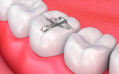Установка пломбы - Стоматология «Линия Улыбки»