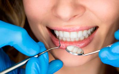Внутриканальное отбеливание - Стоматология «Линия Улыбки»