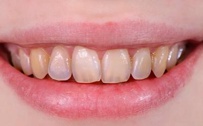 Эрозии зубов - Линия Улыбки