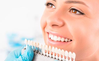 Как отбеливают зубы врачи - Линия Улыбки