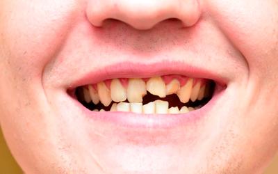 Устойчивость природного зубного покрытия - Линия Улыбки