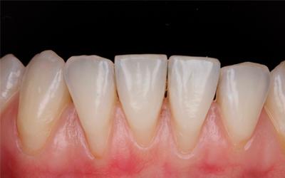 Почему оголяются корни зубов - Линия Улыбки