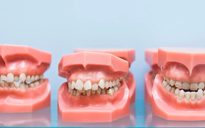 Проблема окклюзии в стоматологии - Линия Улыбки
