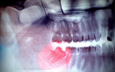 Боль из-за того, что режется зуб мудрости - Стоматология Линия Улыбки