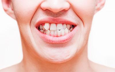 Кривизна у взрослых - Стоматология Линия Улыбки