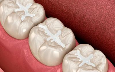 Материалы изготовления - Стоматология Линия Улыбки