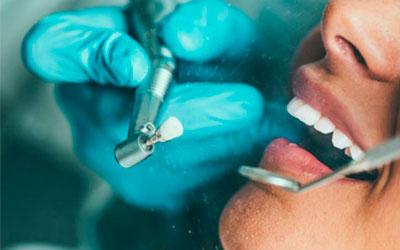Методики ламинации - Стоматология Линия Улыбки