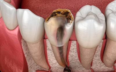 Отек тканей - Стоматология Линия Улыбки