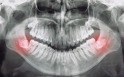 Перикоронит - Стоматология Линия Улыбки