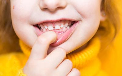 Ретенция имеет отношение и к молочным зубкам - Стоматология Линия Улыбки